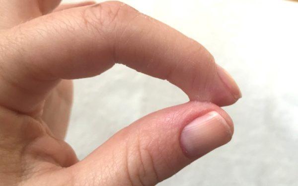 Склеенные пальцы
