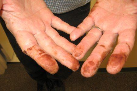 Пальцы рук с пятнами от йода