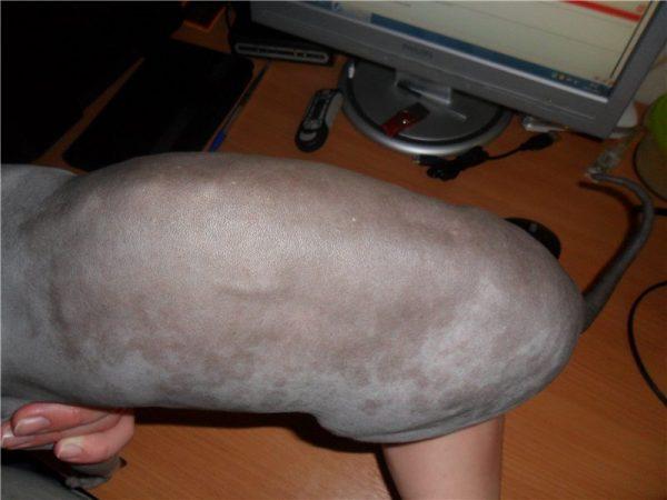 коричневые пятна на коже сфинкса