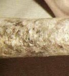 Комедоны на хвосте у сфинкса