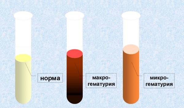 Макро- и микрогематурия