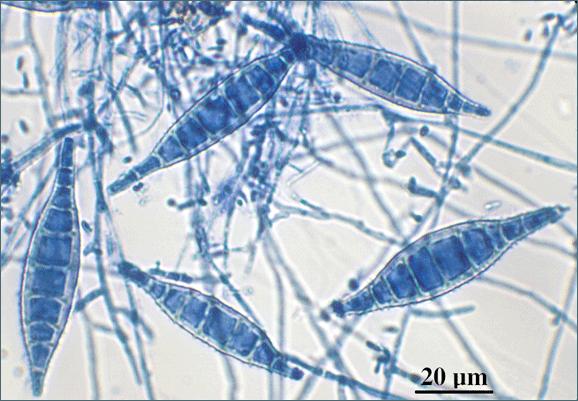 Возбудитель микроспории Microsporum canis под микроскопом