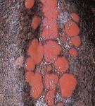 эозинофильные бляшки