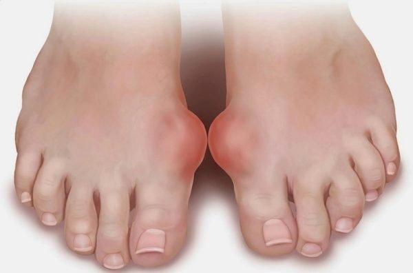 Подагра на ступнях