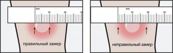 Пример правильного и неправильного измерения Манту
