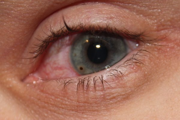 Окалина в глазу